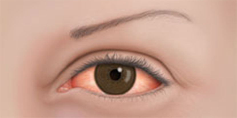 Illustrated, closeup image of an inflamed, red eye due to allergies