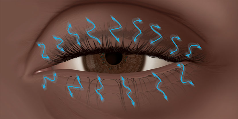 Illustration of eye with rapid, involuntary movement of eyelids, known as eyelid spasms or twitching eyelid
