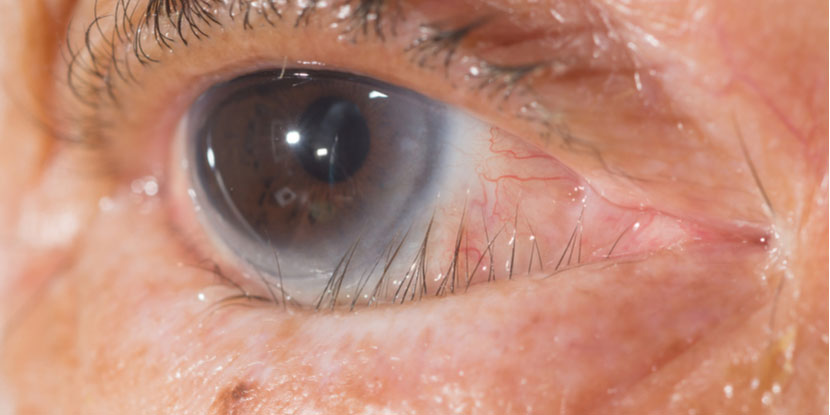 Close-up photograph of an eye with trichiasis, or misdirected eyelashes
