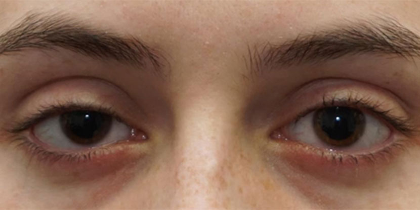 Acquired ptosis is a condition where the upper eyelid droops over the eye.