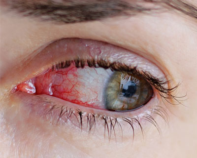 Closeup of a bloodshot eye.