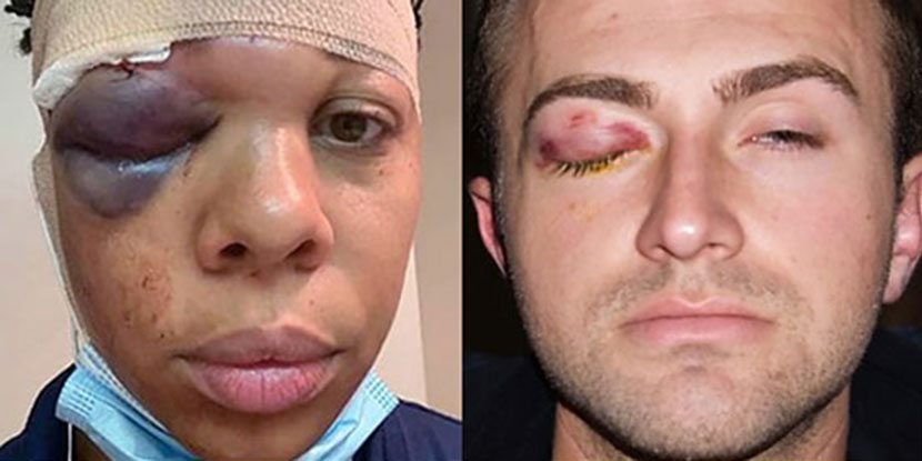 The Academy responds to eye injuries caused by rubber bullets.