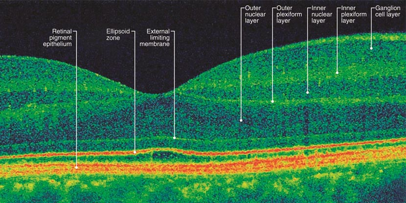 An optical coherence tomography image of a representative normal retina, with the layers of the retina labeled.