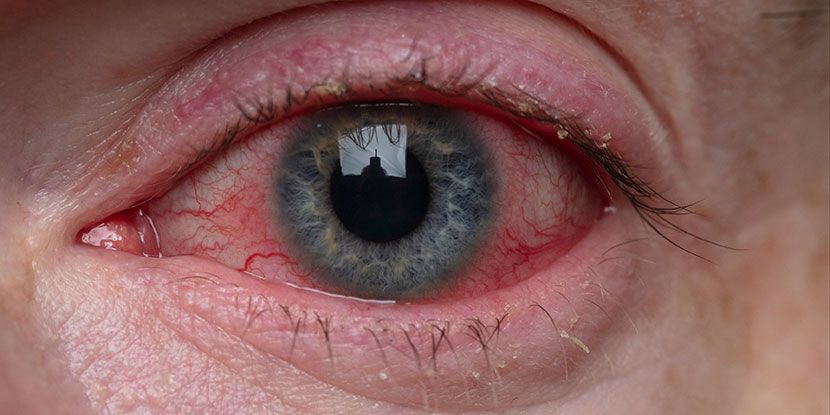 Close up of a man's red, watery, irritated eye
