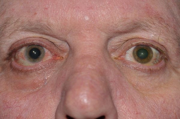 Iris heterochromia in a patient with Fuchs' Heterochromic Iridocyclitis. Note the lighter colored iris in the affected right eye.