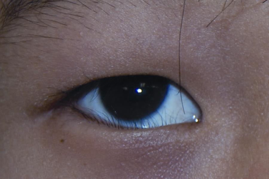 Epiblepharon American Academy Of Ophthalmology