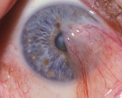 Pterygium Surgery The Perfect Approach American Academy