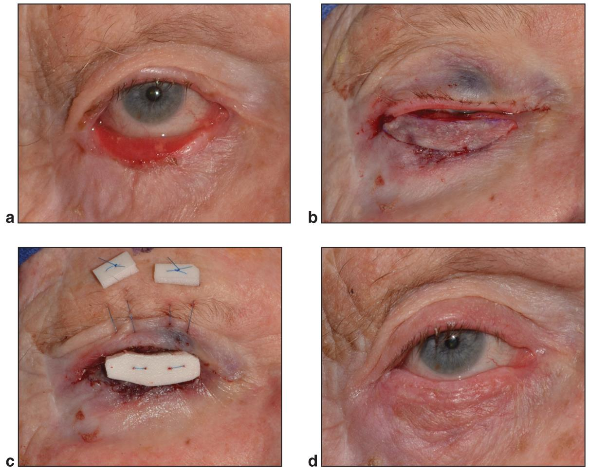 Cicatricial Ectropion American Academy Of Ophthalmology