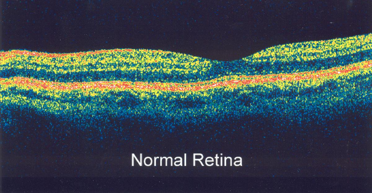 What Is Optical Coherence Tomography American Academy