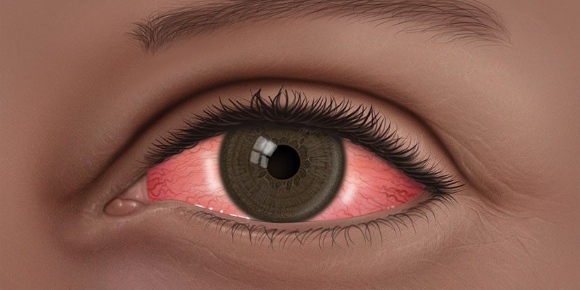 Conjunctivitis: What Is Pink Eye? - American Academy of Ophthalmology