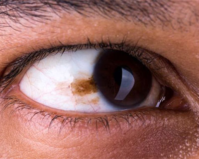 This freckle of the eye is called a conjunctival nevus. The nevus is on the conjunctiva, a clear film that covers the white of the eye.