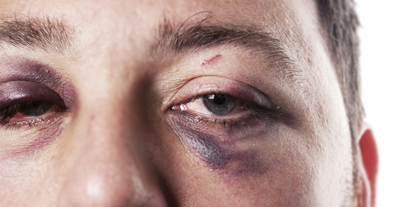 Recognizing And Treating Eye Injuries American Academy Of Ophthalmology