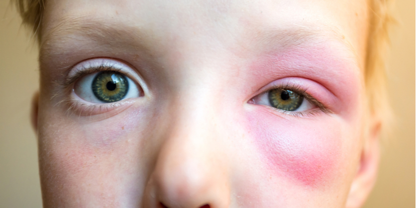 How to Treat a Bee Sting Near the Eye - American Academy of Ophthalmology