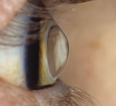 Lateral view of a keratoconic eye