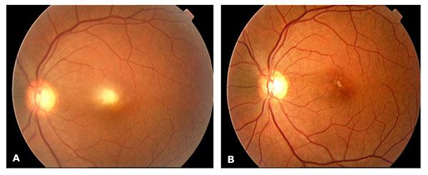 ocular toxoplasmosis who
