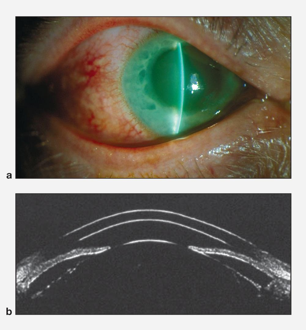 starting glaucoma treatm alternative - HD1000×1078