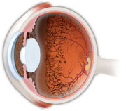 What Is Retinitis Pigmentosa American Academy Of
