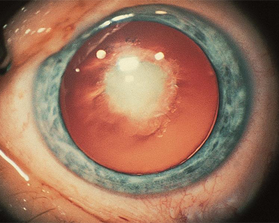 How to Successfully Prepare for Cataract Surgery Spotlight