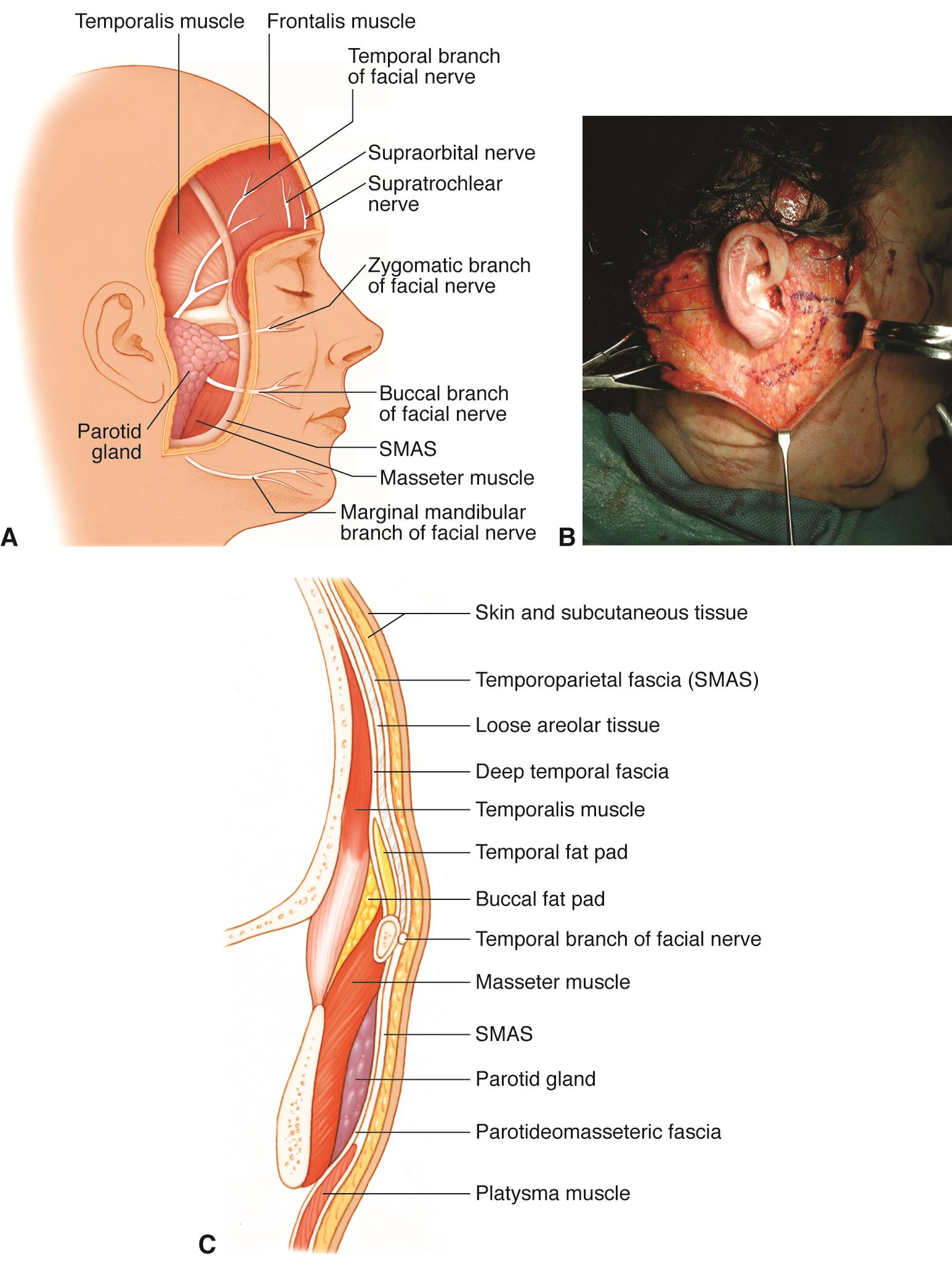 Superficial Musculoaponeurotic System American Academy Of