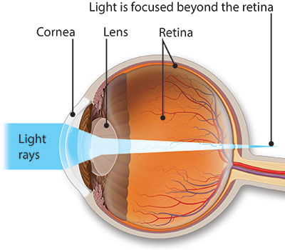 Profile view of an illustrated eye showing how light rays falls beyond the retina of a farsighted eye
