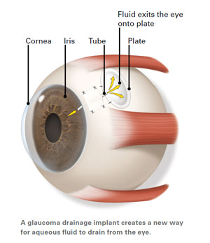 Illustration of a glaucoma filtration bleb, used to reduce eye pressure and reduce glaucoma symptoms
