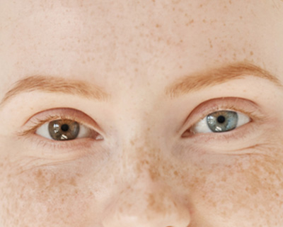 Two differently colored eyes from heterochromia