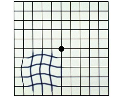 Example Amsler Grid with wavy lines, as it might be seen by somone with vision loss