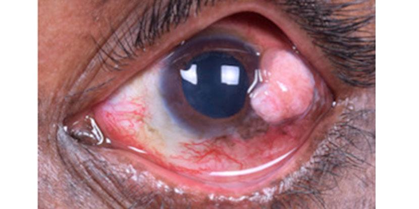 Xeroderma Pigmentosum Linked To High Incidence Of Eyelid
