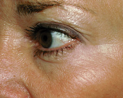 Photograph of eye wrinkles after Botox
