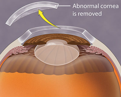 Illustration of a damaged cornea being removed during a corneal transplant