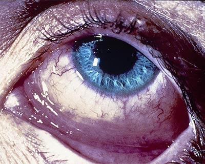 Inflamación de la conjuntivitis alérgica