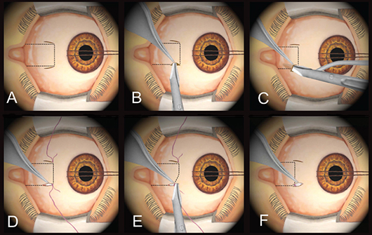 Minimally Invasive Strabismus Surgery A Less Is More Approach