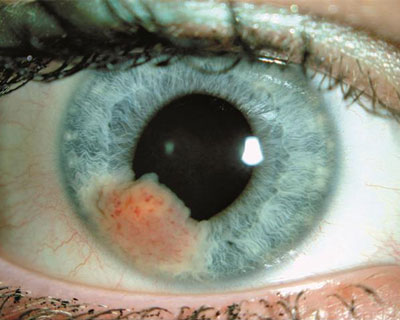 Iris melanoma - An unpigmented ocular melanoma lesion on the iris, with visible blood vessels. Image courtesy of the American Academy of Ophthalmology image collection.