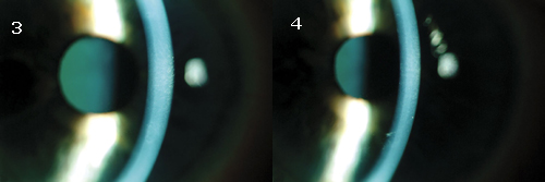 A Curious Case of Corneal Edema - American Academy of Ophthalmology