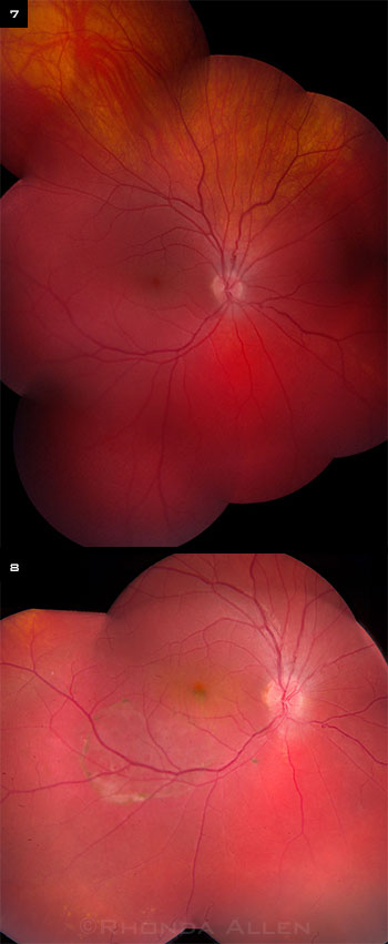 Additional Fundus Images