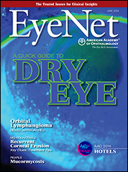 June 2014 EyeNet Cover
