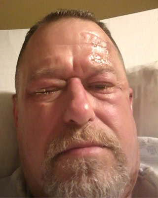 Jeff Strayer recovers in the hospital after treatment for a chemical burn to his eyes.
