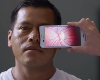Photograph of a man getting an eye exam with a cell phone app