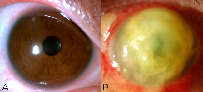 Figure 1. A small peripheral infiltrate (A) does not require culture,