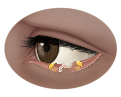 Illustration of lower eyelid with ectropion, or lower eyelid that turns outward