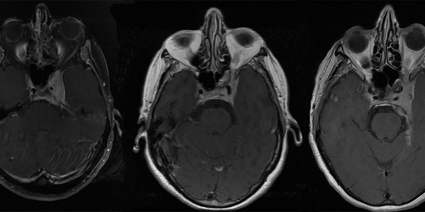 Symptomatic treatment sufficient for most meningiomas of the cavernous sinus