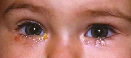 Image result for nasolacrimal duct Obstru