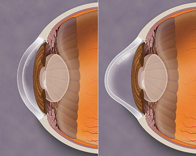 Side-by-side, profile-view illustration of a healthy cornea and one with keratoconus