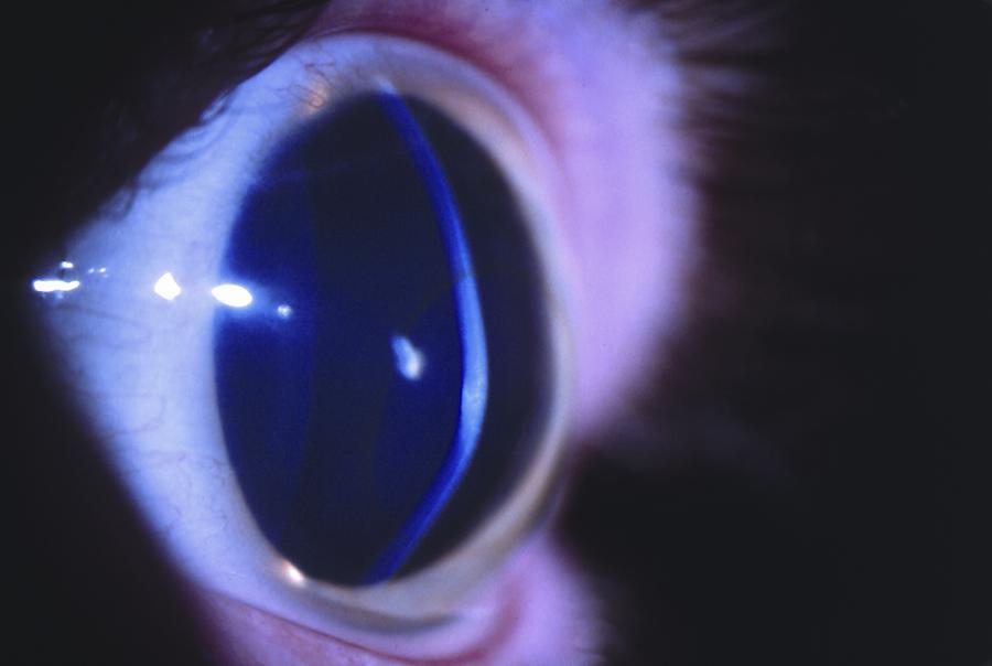 Keratoconus Europe American Academy Of Ophthalmology