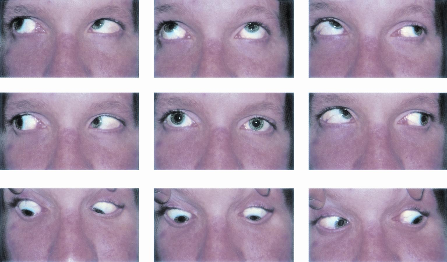 Right Superior Oblique Palsy Shown In Nine Positions Of