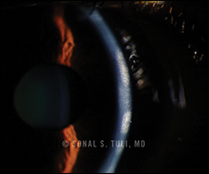Stromal Keratitis Without Ulceration (Interstitial Keratitis)