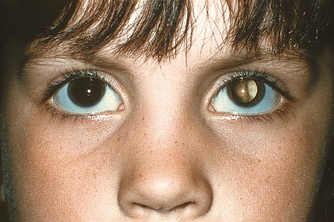 картинка мутный глаз планирую подробно рассказывать