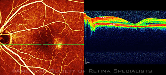 Scanning laser ophthalmoscopy and SD-OCT of a 56-year-old woman with MacTel2.