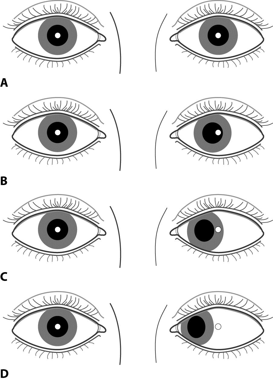 Hirschberg Test American Academy Of Ophthalmology