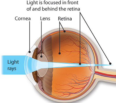 Illustration of an astigmatic eye with light rays landing in front of and behind the retina.